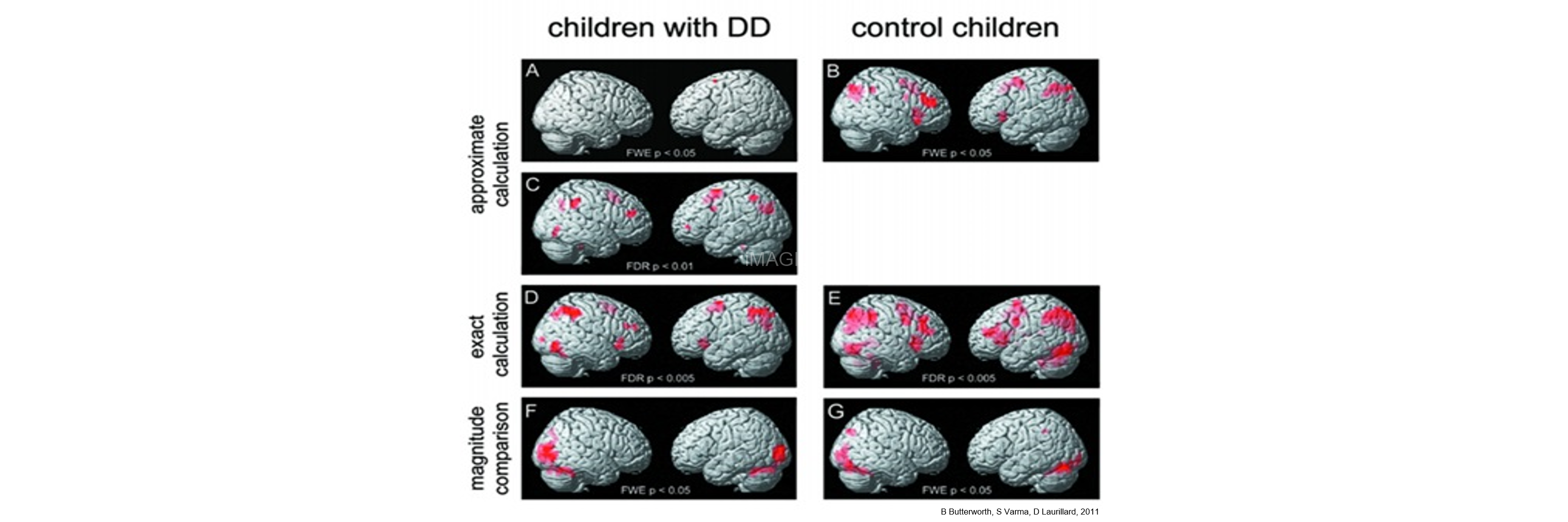 Brain in Children